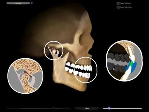 Disfunzione articolazione mandibolare - Dott. Luciano Catalfamo