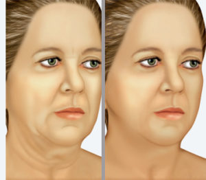 Prof. Luciano Catalfamo - Lifting facciale