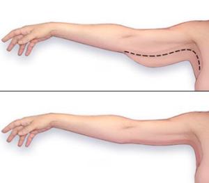 Lifting delle braccia